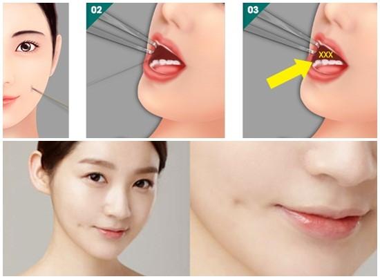 Kỹ thuật thực hiện tạo má lúm khá đơn giản không để lại sẹo xấu lộ ra bên ngoài1