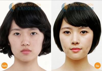 Hình ảnh trước và sau khi thực hiện tạo má lúm đồng tiền không phẫu thuật
