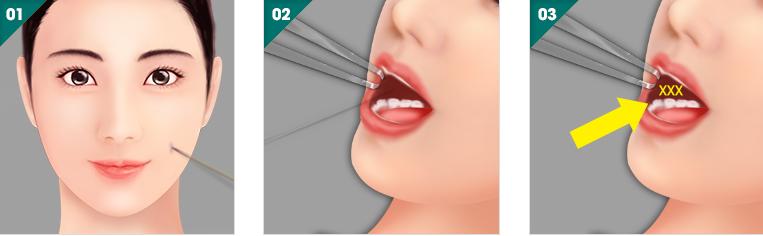 Má lúm đồng tiền nhân tạo có làm ảnh hưởng tới cơ miệng không? 11