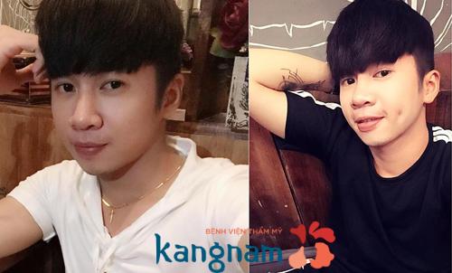 Cách tạo má lúm đồng tiền đẹp tự nhiên tại Kangnam23
