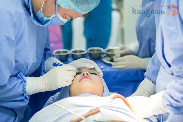 Tạo má lúm đồng tiền có nguy hiểm đến cơ miệng không 2