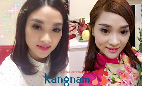 Kết quả tạo má lúm hoàn hào tại Kangnam1